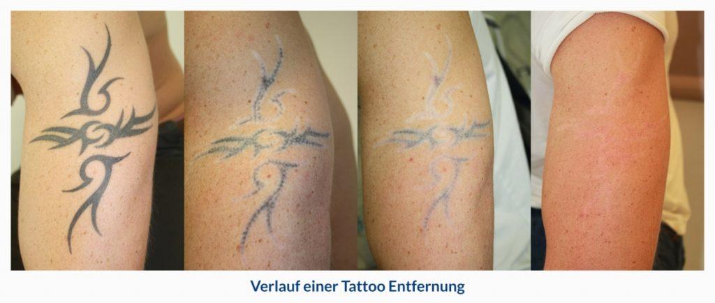 tattoo enfernen dr Hilton duesseldorf foto verlauf